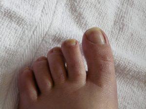 pied après-RJOCoiffure.com-Jacques Dupuis podologue