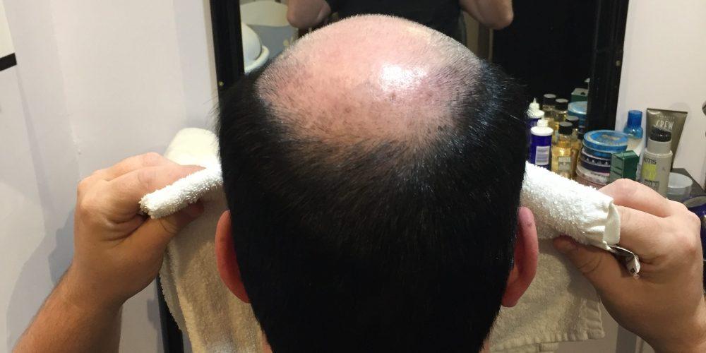 prothese capillaire pour homme Rive-Sud de Montreal-RJOCoiffure.com