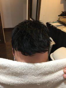 remplacement capillaire homme-rjocoiffure.com